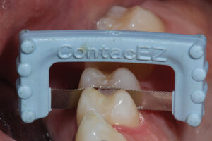 A ContacEZ interproximal finishing instrument refines the proximal surface of the restoration and the contact area.