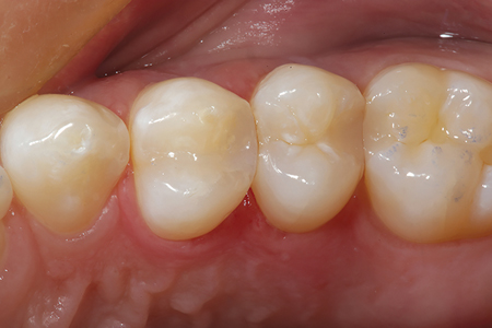 An occlusal view of the completed DO bulk fill flowable composite restoration on tooth 24. Note the final luster and how well the restoration blends into the natural tooth structure