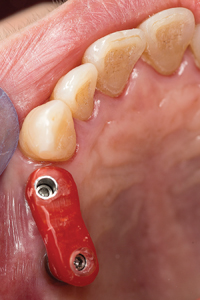 Duralay stent in mouth (occlusal view) confirming accuracy of stone model.