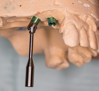Seating tool attached to #15 Multi-abutment demonstrating angulation correction.