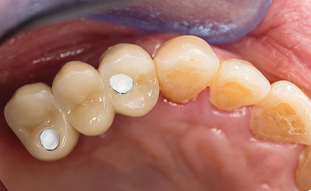 Fixed implant supported bridge with Teflon tape blocking out screw channels.