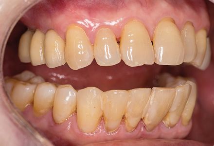 Fixed implant supported bridge post-op (right lateral view).