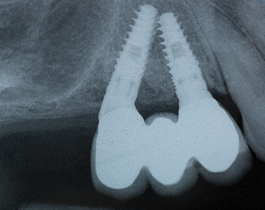Radiograph showing implant supported fixed bridge (three year post-op).