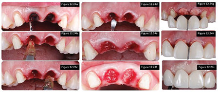 From left to right columns: 12.22A-C. Atraumatic extraction of upper central incisors. 12.22D-F. Socket degranulation and grafting performed up to the soft tissue margins of the socket. 12. 22G-I. native collagen membranes were utilized over the socket orifice and sealed over with a fized provisional restoration.