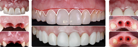 Tissue sculpting of the peri-implant soft tissues with modifications in the provisionals following implant integration.