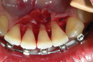 lingual plate dehiscence. 1