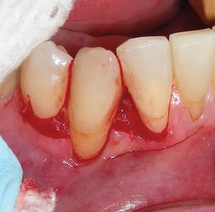 flap incision, papilla de-epithelialization.