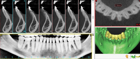 CBCT/intra-surgical views of extra-osseous facial root surfaces and deep interproximal valleys.
