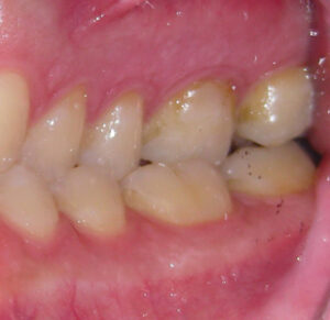 bilateral posterior crossbite, anterior crowding, constricted palate.