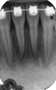 minor bone loss, elongated distance between crest and contact.