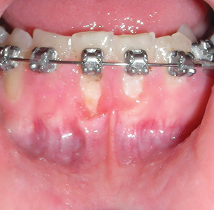 deterioration of hygiene during ortho.