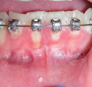 improved hygiene and tissue tone.