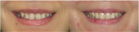 Case 4 Pre- and post treatment smile arc comparison.