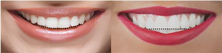 1A. Consonant smile arc. B. Non consonant smile arc.