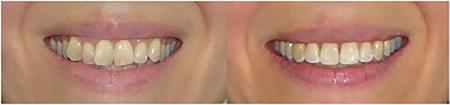 Case 2 Pre- and post treatment smile arc comparison.