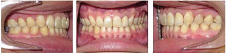 Case 3 post-treatment records. 10. Case 3 Pre- and post treatment smile arc comparison.