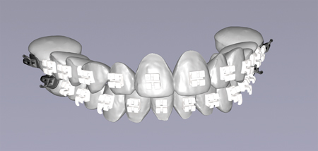 Faster and More Predictable Treatment with 100% Custom 3D-Printed Brackets from LightForce Orthodontics: Q&A