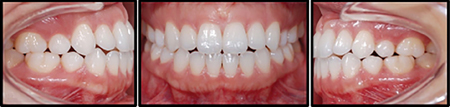 """1A-E. A patient presents with a history of prior orthodontic treatment and relapse of the Class III anterior open bite of -2mm at the laterals complicated by nasopharyngeal obstruction associated with maxillary constriction and dental interferences, anterior tongue positioning, and TMJ dysfunction. ENT+ Allergist consultation was recommended followed by a miniaturized interactive self-ligating bracket system with NiTi clips for light, continuous and synergistic forces with similar NiTi iarch* wires (.016x.014"""" CuNiTi, .018x.014"""" NiTi, followed by .018x.018"""" ß-tiitanium, .020x.020"""" STS). The maxillary dental arch was re-expanded and the open bite was closed with a 5/16"""", 4.5 oz box-pattern elastic from the upper laterals to the lower canines because there was a reverse dental smile. A Class I occlusion was reestablished using good intercuspation and coordinated arch forms within 11 visits efficiently with shortened chair time of 10 min/visit. Fixed retainers were employed canine-to-canine to prevent return of the open bite. In addition, good facial harmony and balance was established with dental aesthetics. This included full display of upper incisors, refilling of the buccal corridors, good overbite of 25% for anterior guidance and midline coordination with the facial midline. 1F. is a comparison between external conventional ligation and Low Profile interactive self-ligation (ISL) with internal NiTi Clip* comparison. Colour elastomers are recommended from upper lateral to lateral for aesthetics and motivational purposes with ISL. If the patient does not have proper oral hygiene, elastomers are not placed at that appointment which is only possible with self-ligation. There are 20 out of 24 ISL brackets without elastomers for bracket hygiene for a total of 83% ligature-free."""