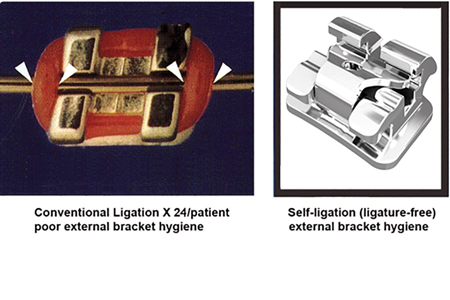 1F. is a comparison between external conventional ligation and Low Profile interactive self-ligation (ISL) with internal NiTi Clip* comparison. Colour elastomers are recommended from upper lateral to lateral for aesthetics and motivational purposes with ISL. If the patient does not have proper oral hygiene, elastomers are not placed at that appointment which is only possible with self-ligation. There are 20 out of 24 ISL brackets without elastomers for bracket hygiene for a total of 83% ligature-free.