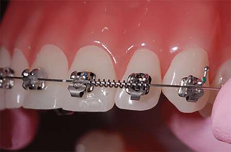 B. Demonstrates conventional ligation for a coil spring to prevent rotation of upper right lateral incisor. The operator needs to try to hold the coil in place with a ligature director for instance while trying to ligate simultaneously either with an O-ring that decays, or ideally a metal ligature shown that is highly inefficient chairside. The metal ligature also needs to be compressed on the distal of the lateral incisor for a medium tightening of the ligature. The metal ligature also needs to be twisted, cut and tucked with 3 more instruments for a total of four. This becomes more inefficient chariside when the lateral is initially rotated