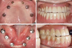 Temporary dentures–upper denture is under-extended to maximize support, retention, and stability in light of the horizontal prosthetic cantilever.