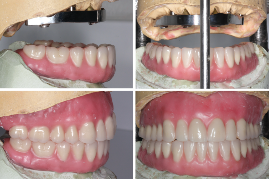 The upper and lower denture wax-ups are shown in occlusion, and in their relation to the bar. The bar will provide support to effectively manage the horizontal prosthetic cantilever.