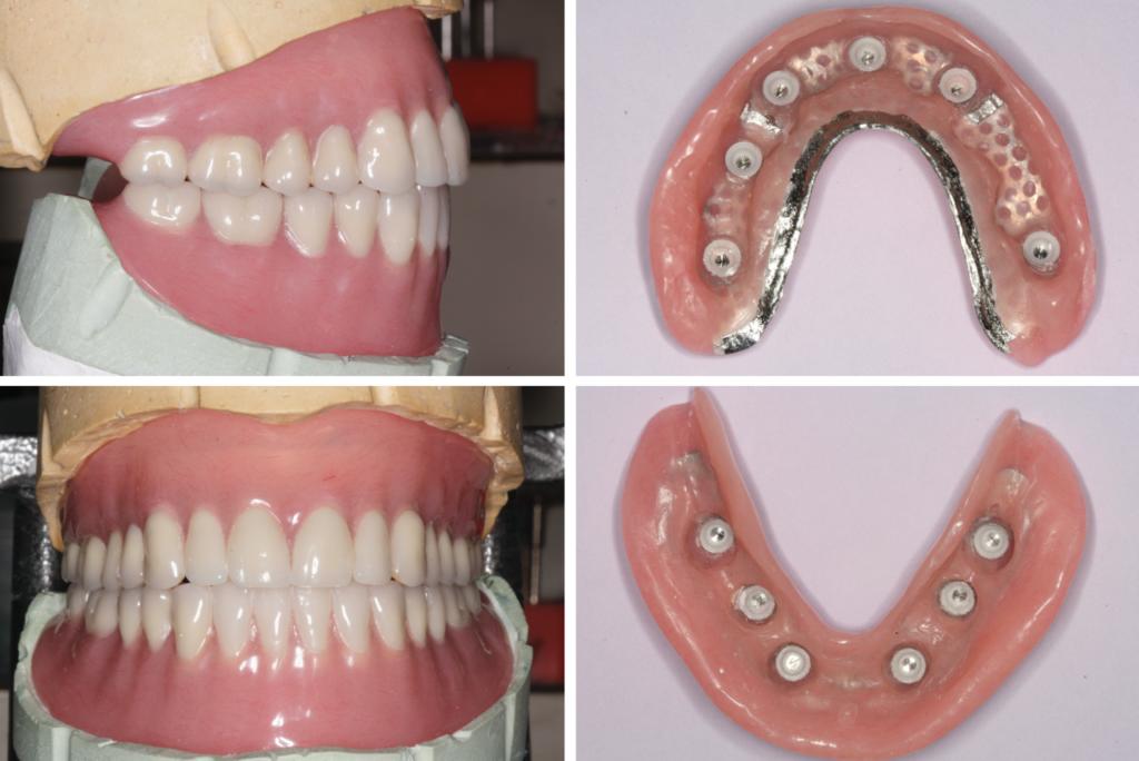 The final mounted dentures. Denture intaglio surfaces, showing the Novaloc® Matrix Housings