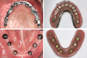 . Intra-oral view – The inserted maxillary bar has achieved parallelism of the Straumann® Novaloc® overdenture abutments. Denture intaglio surfaces, showing the Novaloc® Retention Inserts.