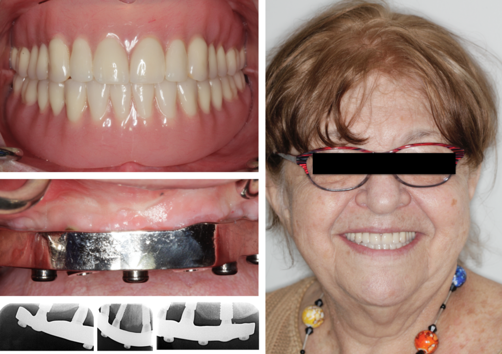 The dentures in occlusion. The bar has 1mm gingival clearance allowing accessibility for plaque control. Extra-oral smile.