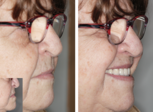 oral smile. 9. Extra-oral photos showing lips at rest, and when smiling. Previous lack of upper lip support (inset) has been corrected.