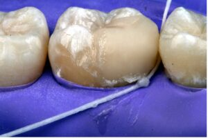 UHMWPE floss (Gorilla Floss–Dental Savings Club) is used to removed excess resin cement.