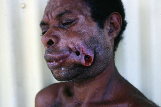 Oral cancer directly related to BQ consumption, resulting in facial disfigurement. Photo courtesy of the Australian Dental Association.