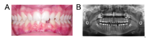 Patient A clinical records: A. Intra-oral photograph and B. panoramic radiograph.