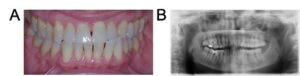 . Patient B clinical records: A. Intra-oral photograph and B. panoramic radiograph.