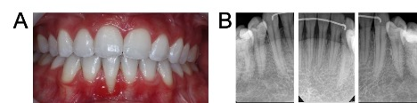 Patient D clinical records: A. Intra-oral photograph, B. mandibular periapical radiographs right canine view (left), central incisor view (centre), left canine view (right).