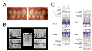 atient E clinical records: A. Intra-oral photograph, B. periapical radiograph maxillary left lateral incisor view (centre), periapical radiograph maxillary right 2nd molar view (upper left) and premolar/1st molar view (upper right), and bitewing radiograph right posterior view (bottom left) and left premolar/1st molar view (bottom right), and C. periodontal charting at teeth #26, 27, 35, and 36.