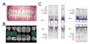 Patient F clinical records: A. Intra-oral photograph, B. full-mouth series, and C. periodontal charting at teeth #12, 11, 21, 26, 44, 45, 46, 47.